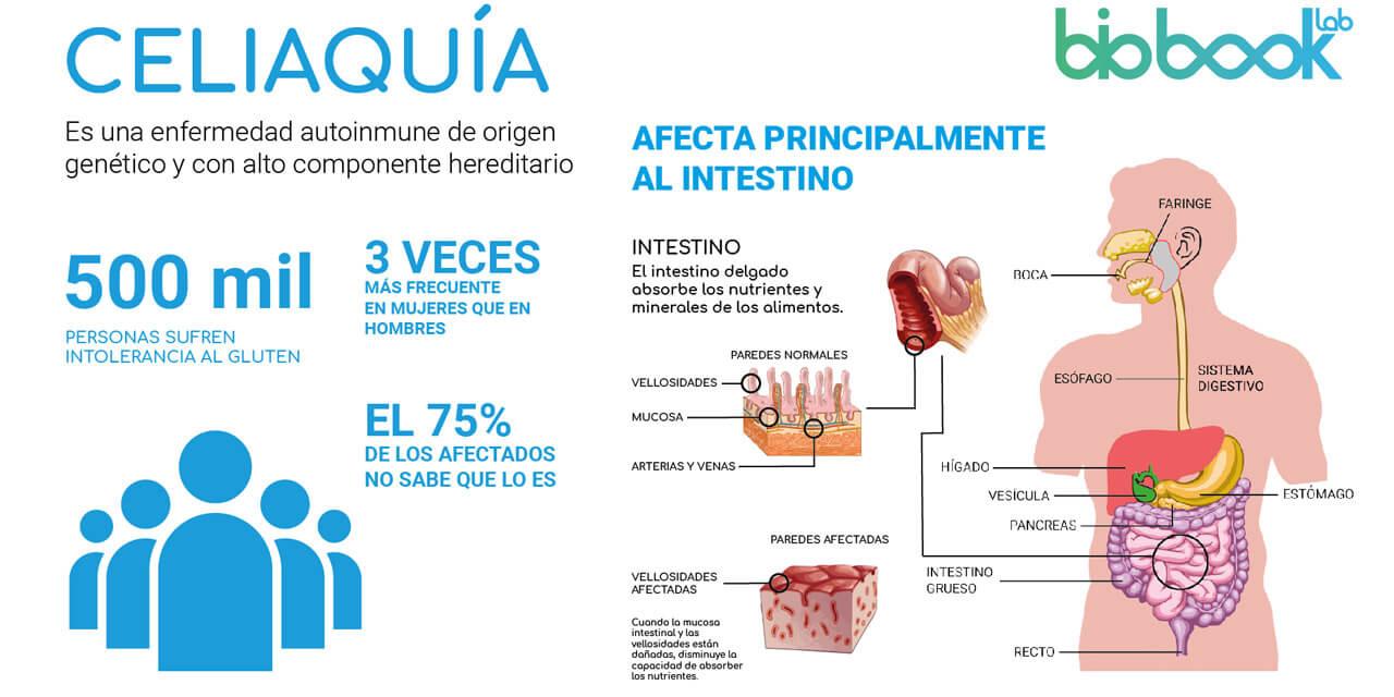 test celiaquia